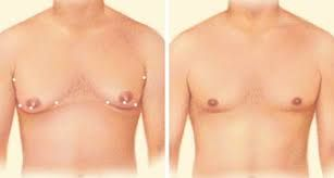 #Gynecomastia #problem is usually seen in puberty due to hormonal changes in #males. But don't feel shy in discussing this problem with your surgeon to have surgery before the condition becomes adverse.