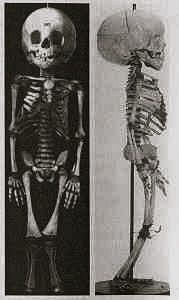 The skeletal remains of Caroline Crachami, the 'Sicilian Fairy' (ca. 1815? – 1824) who is sometimes cited as being the smallest person in recorded history. At the time of her death, she measured a mere 19.5 inches tall. Her condition has subsequently been diagnosed as Seckel syndrome. From the Royal College of Surgeons, London.: Dissect Rooms, Curio, Blog Posts, Royals Colleges, Century Stuff, Strange Medical, Caroline Crachami, Sicilian Fairies, Drawing