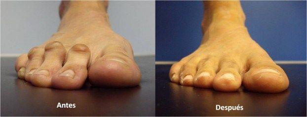 Hola chicas sab an que si usamos zapatos muy ajustados for Operacion de pies