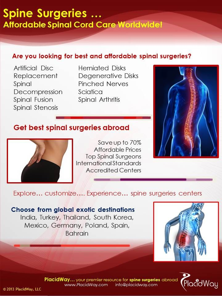 Find the best spine care surgery centers for your healthcare needs worldwide. PlacidWay helps you to get cheap spine care surgery  hospitals at affordable prices. You also have various options to compare the spine care surgery prices, doctors, and options in different counties. #infographic #health #spinecare #orthopedics #healthcare #medicaltourism