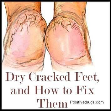 25 best ideas about dry feet treatment on pinterest dry for What does putting vicks on your feet do