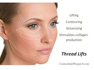 Thread Lifts - The No-Surgery Face Lifting Alternative | Cosmetic Medicine, MD
