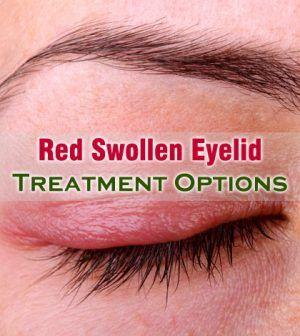 Effective #Red #Swollen #Eyelid #Treatment Options To Go For -   #RedSwollenEyelidTreatment #SwollenEyelidTreatment #EyelidInfection #SoreEyelids #SwollenEyeTreatment #EyelidSwelling #Eye
