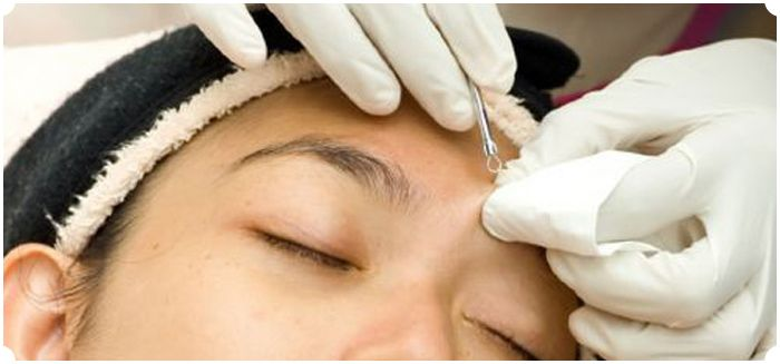 Facial extractions, good or bad? http://theskiny.com/extractions-facials/