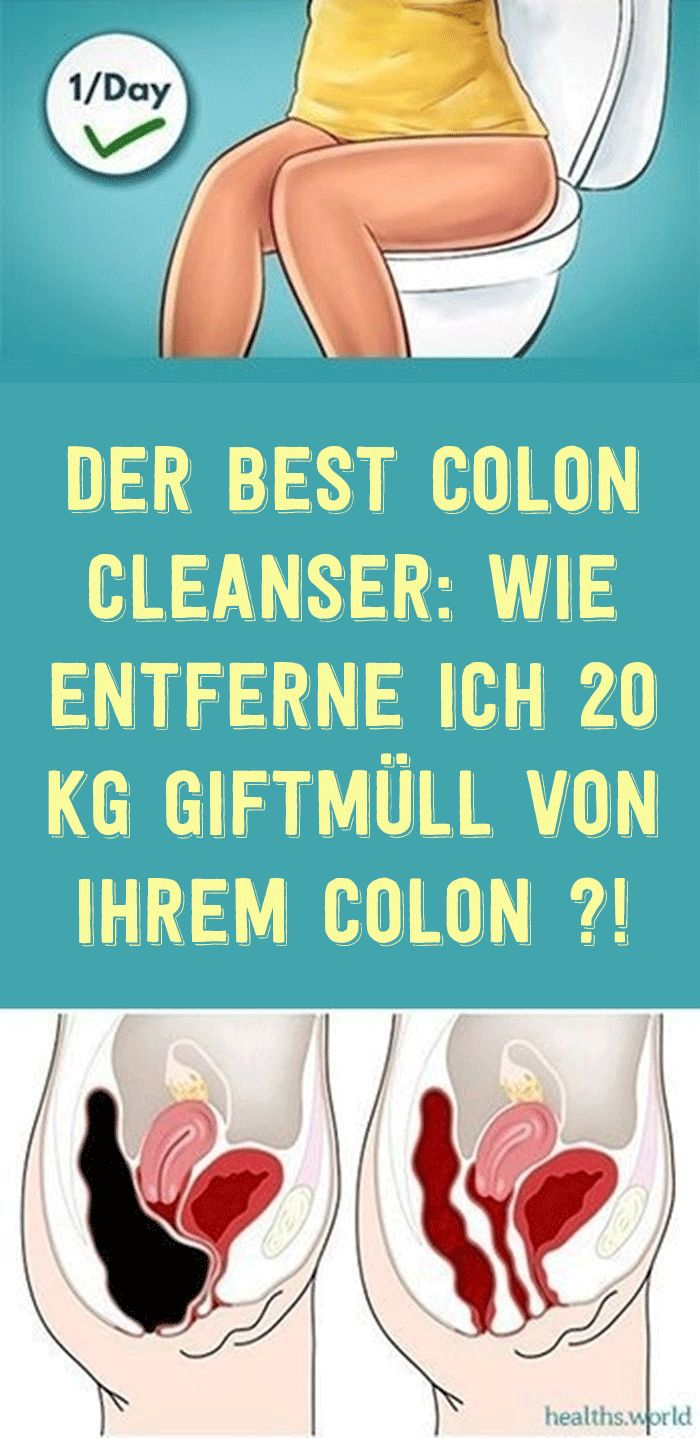 Der BEST Colon Cleanser: Wie entferne ich 20 kg Giftmüll von Ihrem Colon ?!
