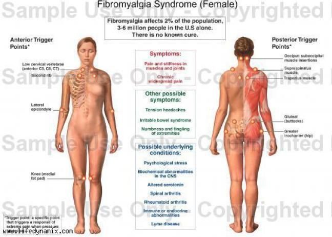 Fibromyalgia is the second most common rheumatic disorder behind osteoarthritis and, though still widely misunderstood, is now considered to be a lifelong central nervous system disorder, which is …