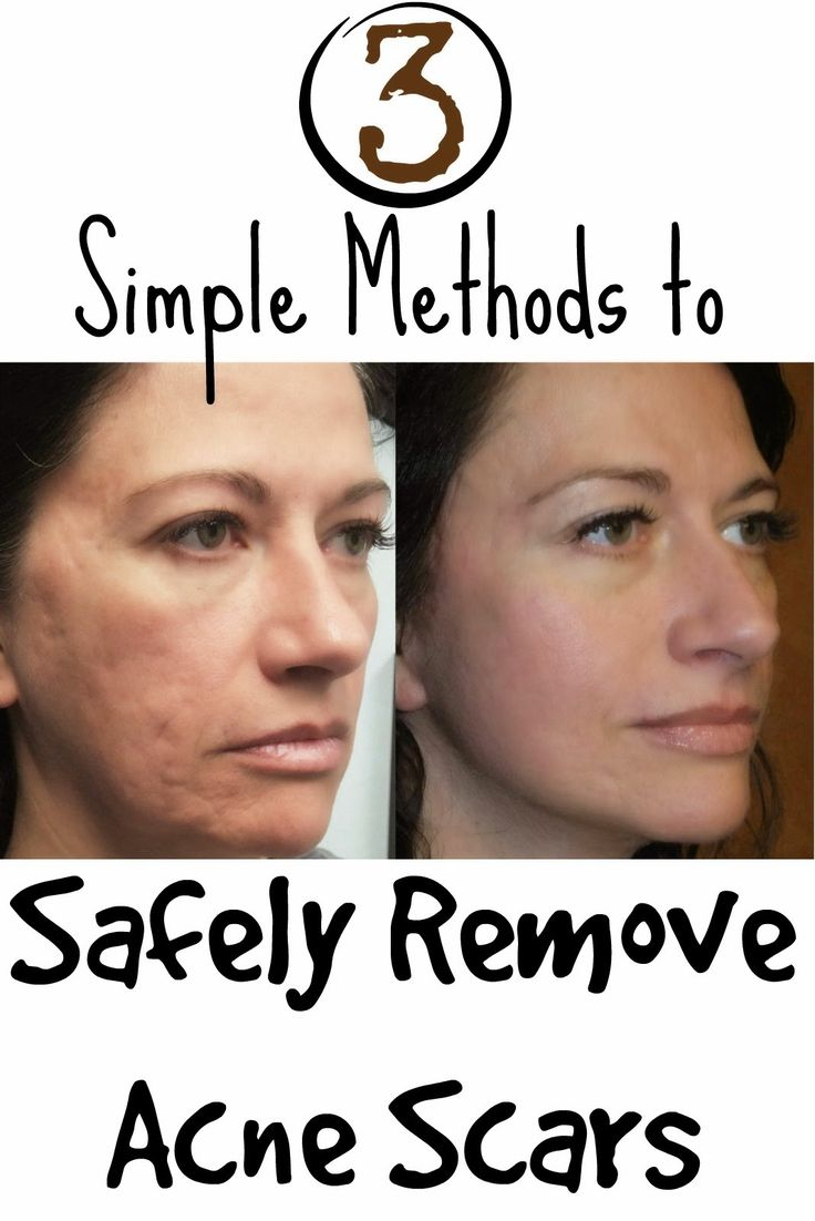 Skin Care And Health Tips: 3 Simple Methods to Safely Remove Acne Scars http://www.jexshop.com/