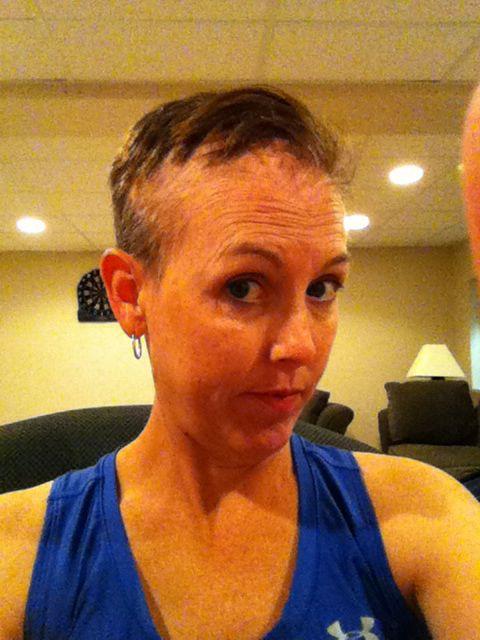 Hair loss from brain tumor radiation | Brain Tumor ...