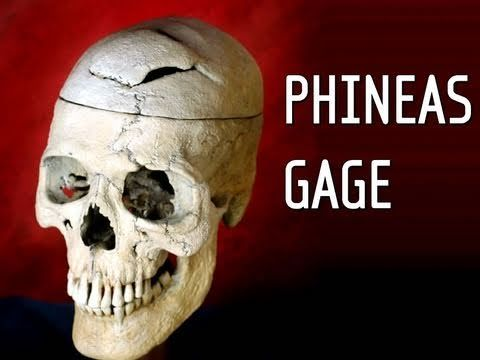 Phineas Gage: A Song - YouTube
