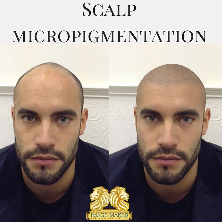 As a man, a receding hairline can bring down your self confidence. Scalp micro-pigmentation is a non-surgical procedure, that uses the most modern technique and simulates more hair on the scalp by giving it an appearance more density. At Image Maker we use organic ink, which is hypoallergenic and biodegradable.  Call us to make an appointment 305-529-9975 or visit www.imagemaker2002.com  #brows #spa #eyes #me #beauty #makeover #miami #share #spaday #instapic #follow #latisse #tattoo…