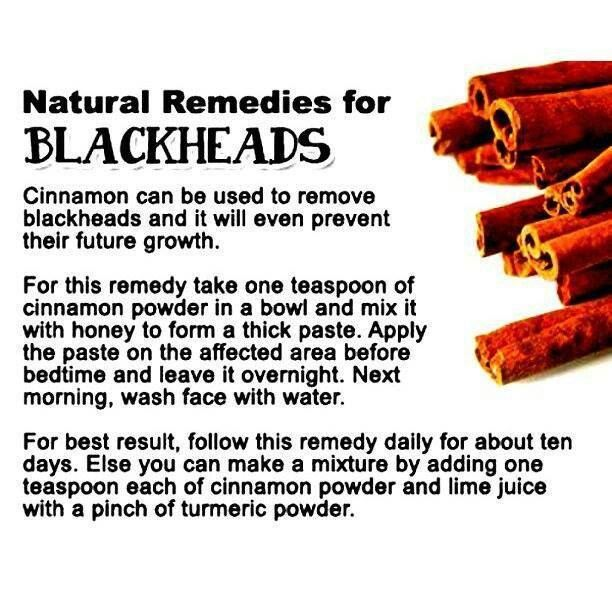 Natural remedies for Blackheads