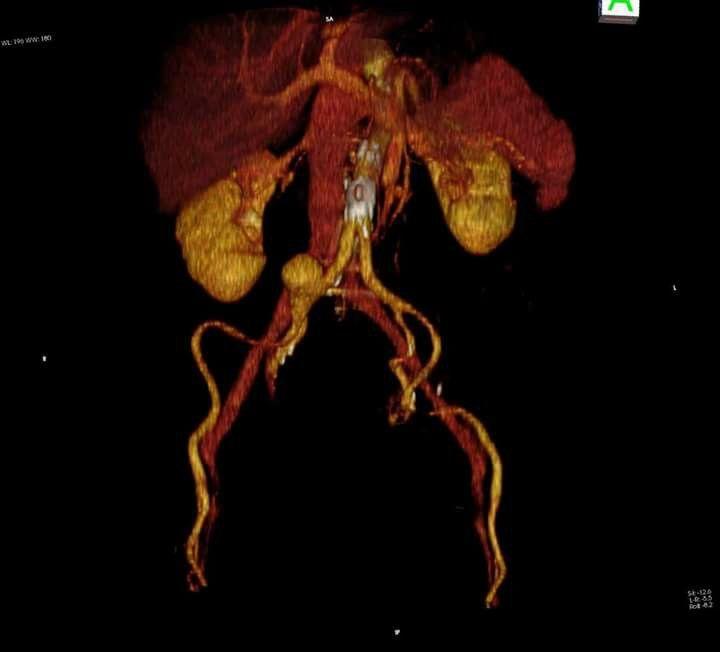 3D TC  Aneurisma arteria iliaca derechs