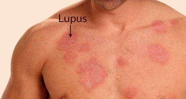 Lupus skin rash on body can be quite irritating, painful and disgusting. Eliminate them using these highly potent home remedies!