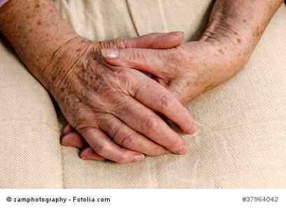 Auf einmal sind sie da: Hässliche graubraune Flecken an den Armen, auf den Händen, im Gesicht – die Pigmentflecken (Lentigines seniles, Lentigines solares). Sie tun nicht weh, aber sie sind unschön. Die Pigmentflecken sind Pigmentstörungen, die durch UV-Strahlungen und der Oxidation von... #a