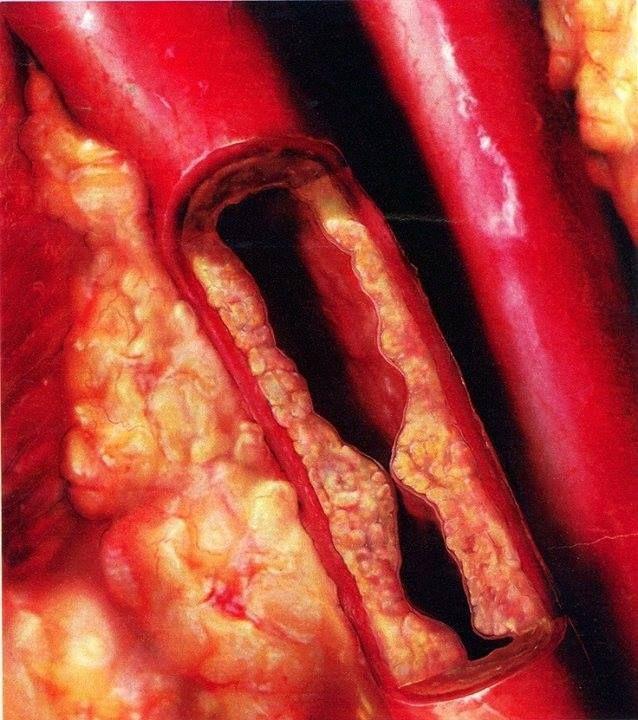 ¡Esto es lo que puede causar el #Colesterol a las #Arterias de nuestro #Cuerpo!  Gracias a las arterias todo nuestro organismo recibe el #Oxígeno que necesita y podemos seguir viviendo. Sin embargo, estas pueden ser obstruidas a causa del Colesterol gracias a una alimentación inadecuada  como vemos en la siguiente #Foto, impidiendo una #Oxigenación correcta y aumentando el #Riesgo de sufrir un #Infarto #Cardiaco (#Ataque al #Corazón). ¡No deje lo que realmente importa para el fin