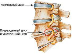Остеохондроз шейного отдела, упражнения для профилактики