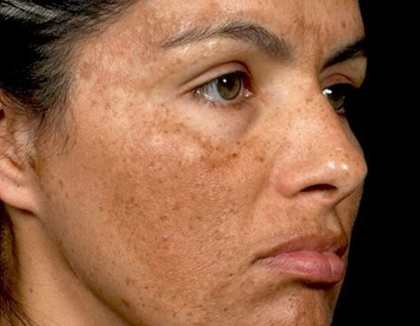 Image result for Melasma Due to Hormonal Imbalance - Treat It Fast With These Quick Tips!