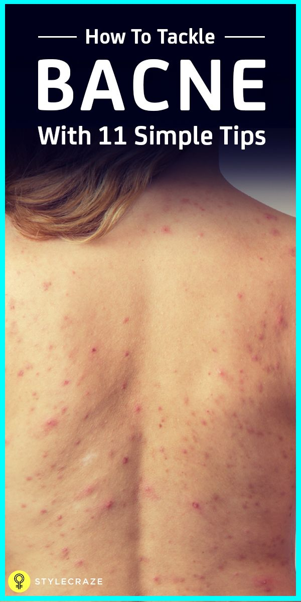 How To Get Rid Of Shoulder And Back Acne NaturallySri Kavya