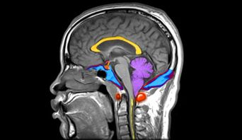 A Chiari malformation (sometimes called an Arnold Chiari) means that the lower parts of your brain have been pushed downwards towards your spinal cord, so they are below the entrance to your skull.  Symptoms can include:- Headaches aggravated by exercise, straining, laughing, bending over Neck pain Dizziness and balance problems Numbness & tingling in the arms & legs Blurred vision, involuntary eye movements Swallowing problems Hearing loss & tinnitus Insomnia Depression Nausea & Vomiting