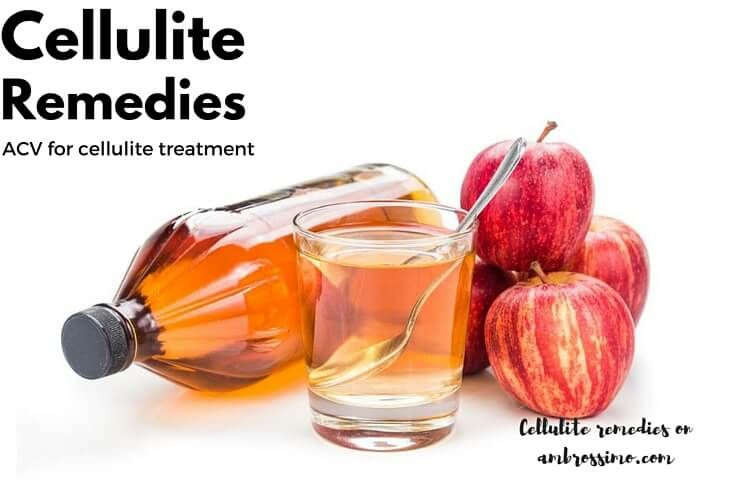 ACV for Cellulite treatment