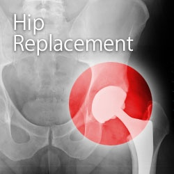 What is a hip replacement made out of?