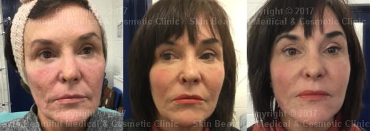7 point PDO thread lift by Helen internationally respected expert Helen Bowes. Before, 4 weeks after and with additional threads
