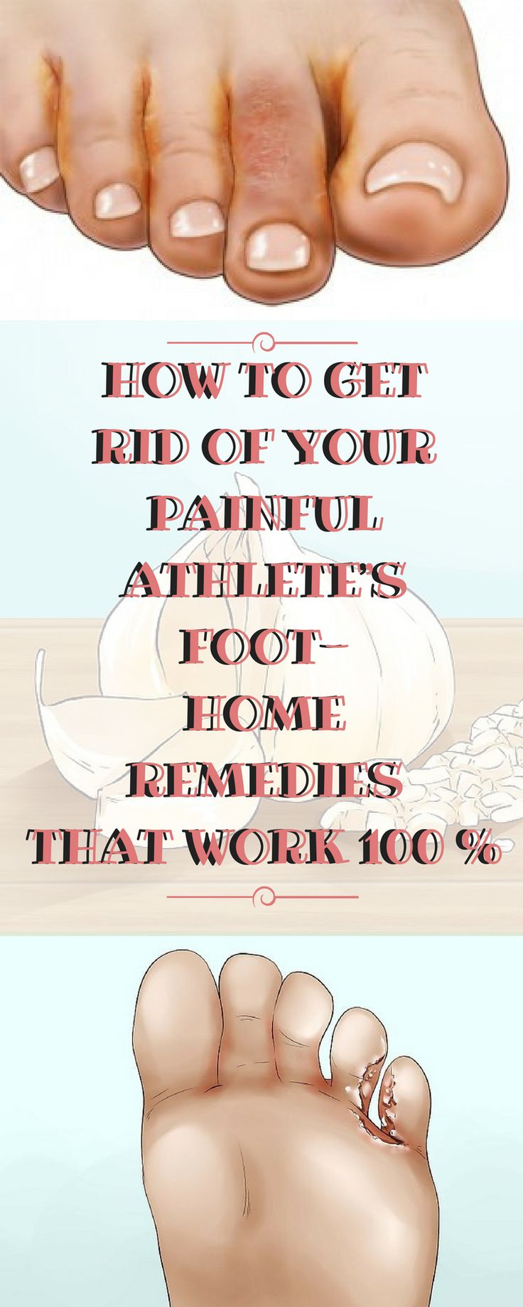 HOW TO GET RID OF YOUR PAINFUL ATHLETE'S FOOT- HOME REMEDIES THAT WORK 100 %