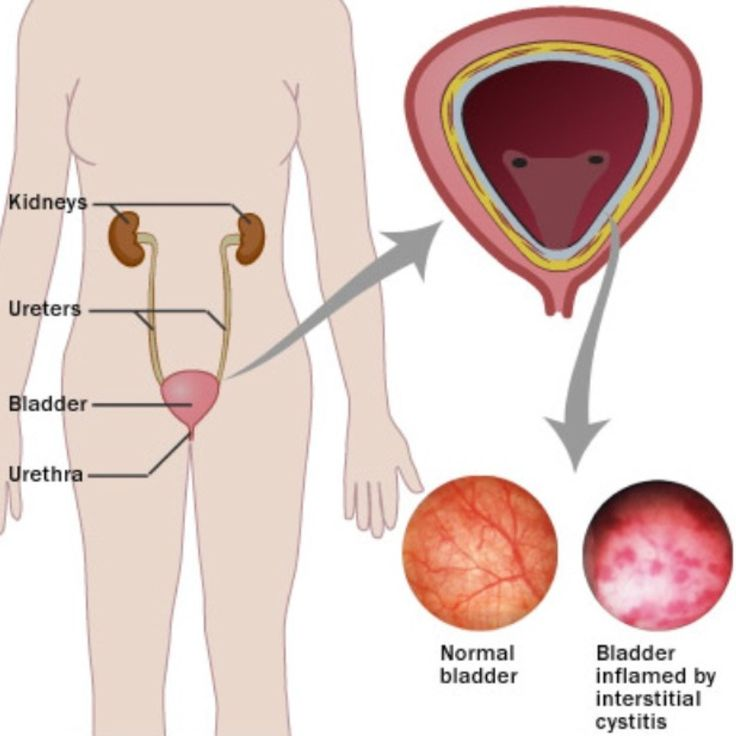 Natural Treatment For Painful Bladder Syndrome