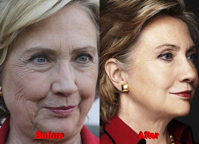 """""""Hillary Clinton Plastic Surgery. Before and After Botox Facelift."""" I do NOT like HC, BUT, whether it was botox, surgery, a peel, micro liposuction, or a combo, whoever did her face and neck did a fabulous job. She doesn't look like she's trying to look 30 again, she looks refreshed. Like herself, just better. Best makeup, best hairstyle, best she's ever looked. Now if she would just lose those horrid, I'm-trying-to-relate-to-middle-America-pantsuits. So insulting to all older American…"""
