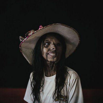 Een winnende foto van  Zacharie Rabehi bij de EyeEm Photography Awards 2016. Hier zie ik de perfectie van imperfectie een prachtig beeld waar ik gelijk verliefd op ben, dit is de mens en zij is uniek.