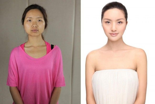 Standards of Beauty has gone Up : Chinese woman Before After Plastic Surgery