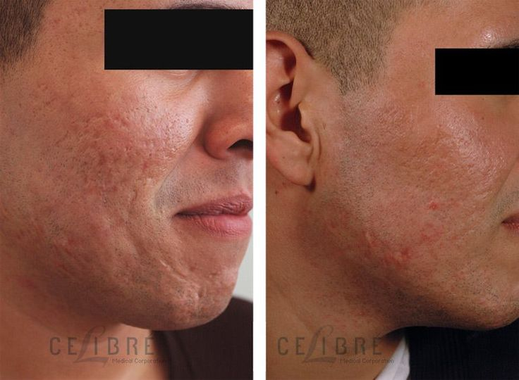 images on before and after acne scarring surgeries | Laser resurfacing for textured acne scars, before and after photos. #pimplesonforeheads
