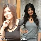 Top Bollywood Plastic Surgery Before & After: Shruti Hassan Nose Job Lip Botox Pictures