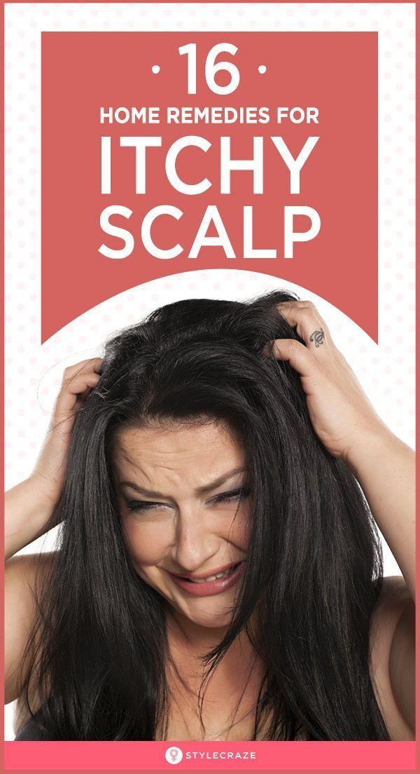 home remedies for itchy scalp in summer