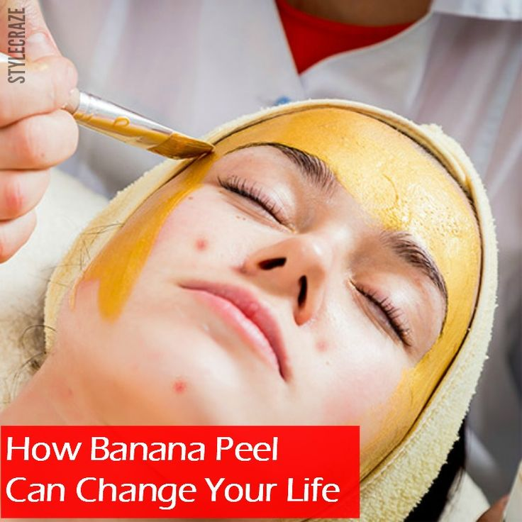 Ever wondered what could be that one ingredient which can give you instant respite from the painful mosquito bites? Well, it's the banana peel.
