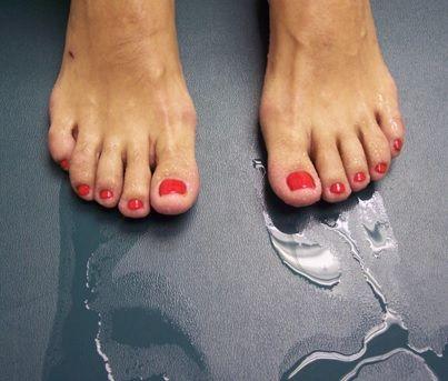 Leczenie nadpotliwości stóp botoksem - kiedy należy zdecydować się na zabieg? #stopy #pot #nadpotliwosc #leczenie #botoks #botox