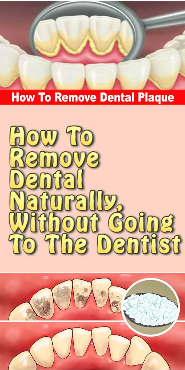 How To Remove Dental Naturally, Without Going To The Dentist!