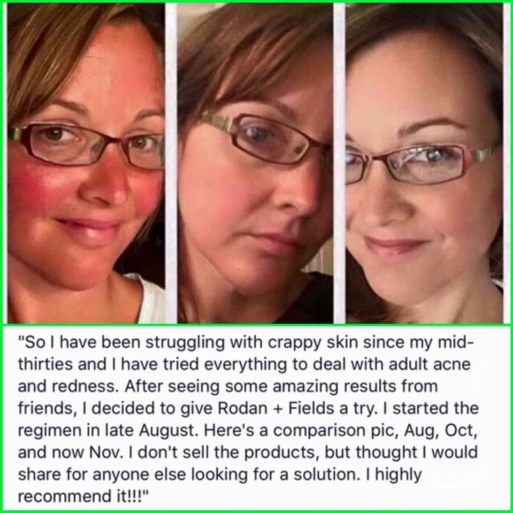 Our SOOTHE regimen helps fortify the skin's natural moisture barrier, calms visible redness, and reduces irritation. It is formulated without fragrance, dyes, or alcohols that can irritate sensitive skin. It's super gentle yet clinically proven effective. Best of all, it's STEROID-FREE!!! Msg me to see if Soothe is right for you.