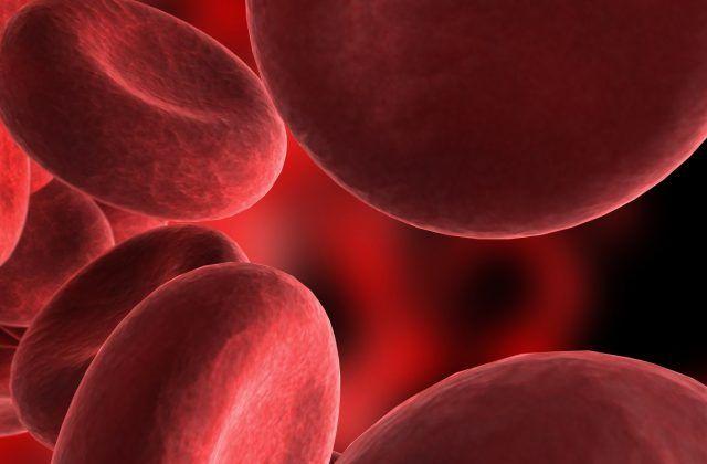 Qué es la Anemia aplásica