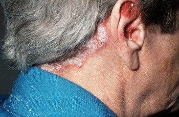 Псориаз является воспалительным заболеванием кожи, которое, по некоторым оценкам, поражает около 2,2% взрослого населения. Некоторые люди могут быть генетически предрасположены к псориазу....