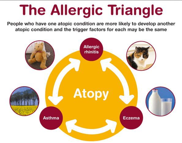 The Link Between Atopic Dermatitis (eczema), Food Allergy, Allergic Rhinitis (hay fever) and Asthma. - AD RescueWear