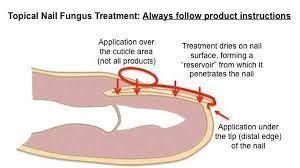 canesten fungal nail treatment set instructions