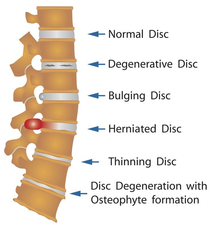 Getting Spinal Decompression can help with all of these issues. Schedule one today!