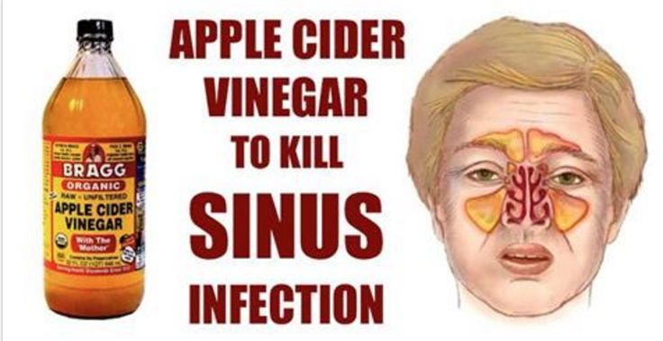To get the most of it, make sure you choose raw, unfiltered, unpasteurized, and organic apple cider vinegar, such as Bragg Organic Raw Apple Cider Vinegar. When ingested, apple cider vinegar breaks up the mucus and clears the airways, while its antibacterial content kills off the bacteria responsible for the infection. Once the mucus is broken down, apple cider supplies the body with nutrients which boost immunity and prevent the infection from re-occurring. Even though ACV is acidic in…