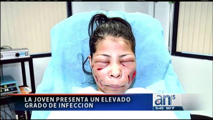 Intervienen en Miami a víctima de tratamiento de belleza ilegal - Améric...