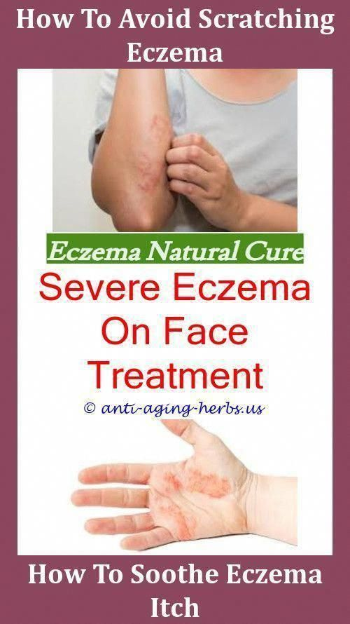 How Can I Treat Eczema Best Shower Oil For Eczema,bad case