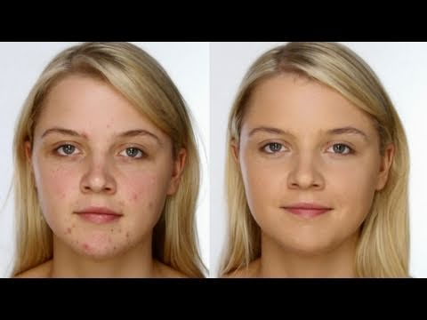 Wow this video makes great points for covering up spots from acne for a light flawless looking face