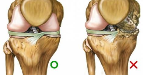 Come rigenerare la cartilagine ed allontanare l'infiammazione