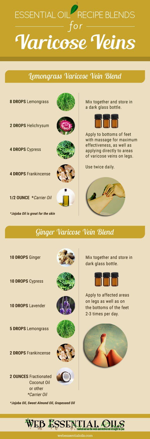 Essential Oil Remedies For Treating Varicose Veins At Home Infographic