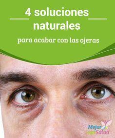 4 soluciones naturales para acabar con las ojeras  No estamos hablando de recurrir a tratamientos extremos o montones de maquillaje, sino a esa belleza que cada persona irradia de manera natural.